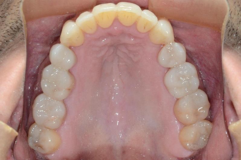 Foto da boca antes do tratamento