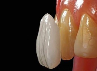 https://www.delatorre.odo.br/wp-content/uploads/2015/11/facetas-e-lentes-de-contato-dentais-320x235.jpg